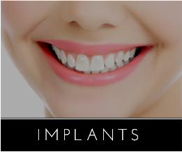 Newport Beach Cosmetic Dentistry