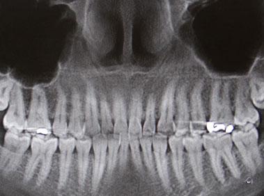 implant treatment digital 3d imaging ICAT
