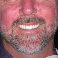 Dental Crowns Newport Beach
