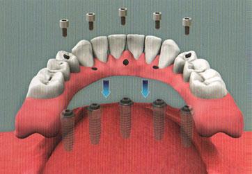 hybrid dentures newport beach